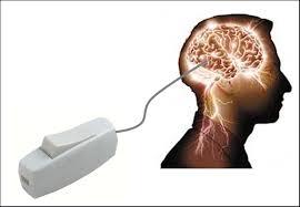 cerebro movil